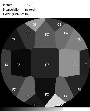 Distributed Computing Platform for EEG signal analysis – Jan